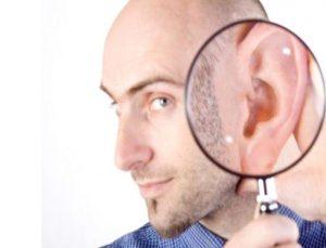 Kepçe kulak ameliyatı nedir, nasıl yapılır, işitmeyi engeller mi?